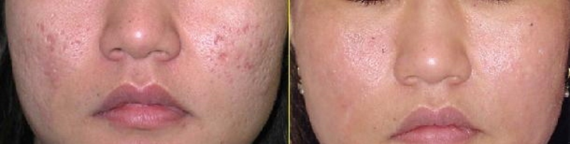 prp-microneedling-before-after